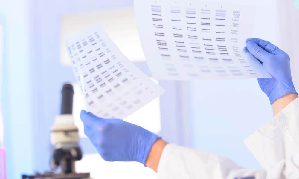 lab technician with blue gloves analyzing dna information